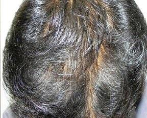 HairActiv - मतभेद,दुष्प्रभाव