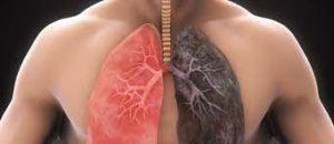 Detox Lungs - सामग्री, के फायदे, रचना